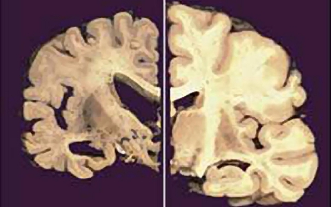 Thumbnail image for Scientists closer to Alzheimer's cure
