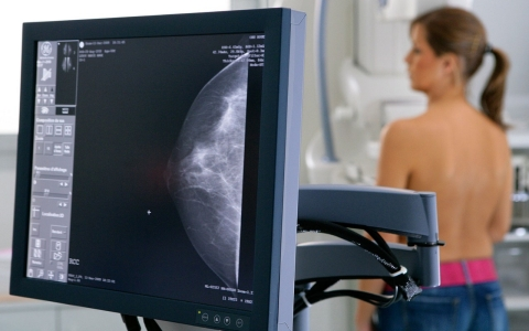 Thumbnail image for Global cancer deaths rise to 8.2 million, breast cancer toll up 14 percent