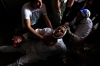 A wounded Egyptian man receives treatment on the ground during clashes between security forces and Morsi supporters in Ramses Square, Friday in Cairo.