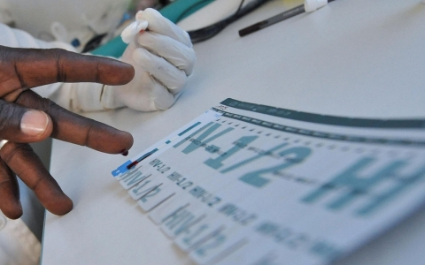 Thumbnail image for HIV transmissions down dramatically, says UN report