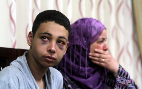 Thumbnail image for Family urges US to lobby Israel over plight of beaten American teen
