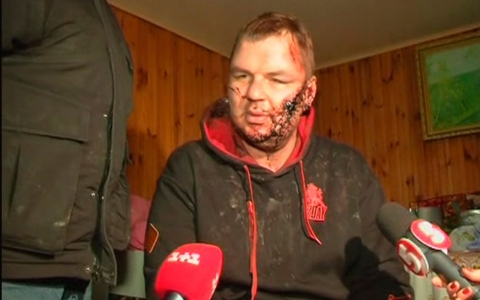 Thumbnail image for UN calls for Ukraine torture probe as activist speaks of being 'crucified'