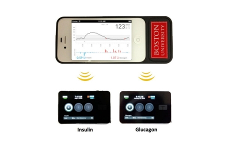 Thumbnail image for 'Bionic pancreas' shows promise for Type 1 diabetes