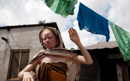 Abducted Tanzanian albino boy found dead with limbs severed