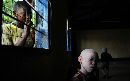 Tanzania police arrest hundreds of witchdoctors for murdering albinos