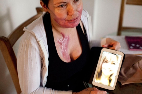 acid attacks Colombia