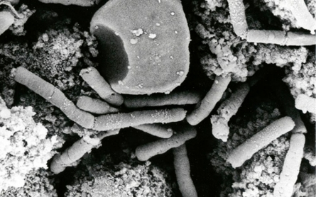Pentagon says it shipped live anthrax spores by mistake