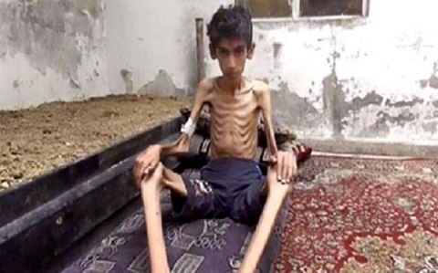 Thumbnail image for 'Cowardly weapon' of starvation claims lives of Syrians cut off from world