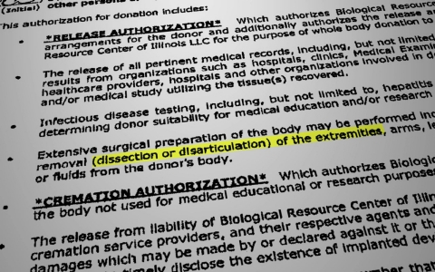 "A release form for Biological Resource Center of Illinois includes language that donated bodies may undergo ""dissection or disarticulation"" of arms, legs, hands, feet, head, spine and other organs, but Cathy Senderak says that information was unclear to her."