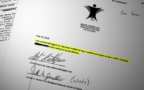 Biological Resource Center of Illinois provided America Tonight a document showing that at least one purchaser acknowledged body parts they were receiving were infected.