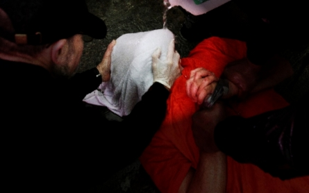 Donald Trump and the US policy on torture