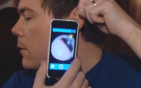 Cellscope is an otoscope attachment you can click onto your smartphone to take videos inside your ear